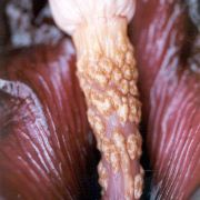 Image of Amorphophallus angulatus  Hett. & A. Vogel.